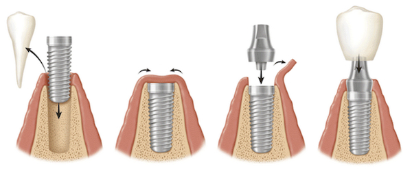implant_zebowy