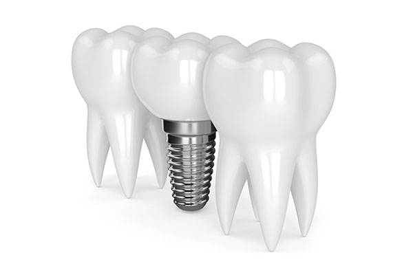 implanty-stomatologia-frodent