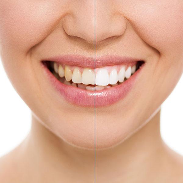 wybielanie-stomatologia-frodent